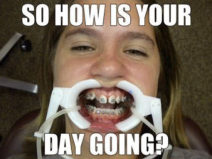 So How Is Your Braces Off Meme